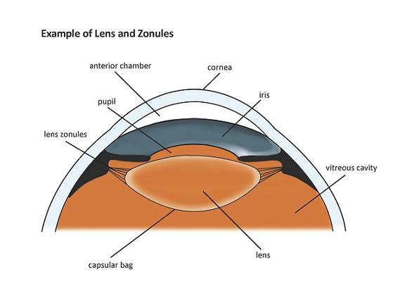 Lens Zonules : Theory Morphological And Functional ...