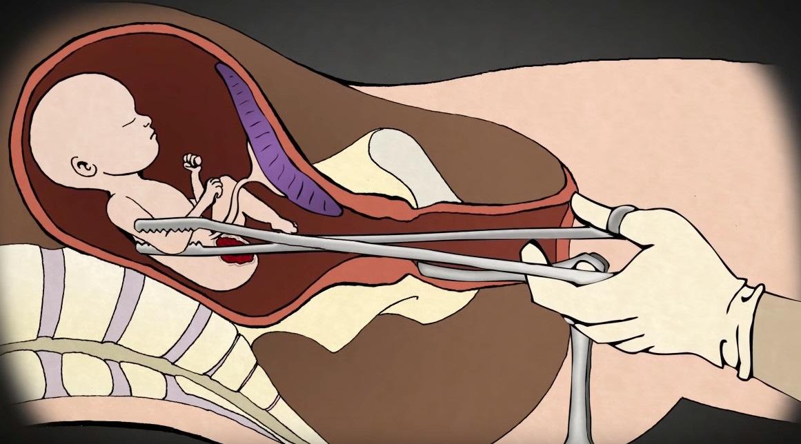 El doctor Levantino presenta en video el proceso del aborto en el segundo trimestre por desmembramiento.