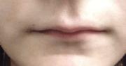 lipsThin