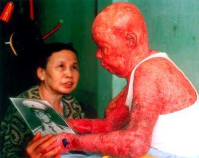 Agent Orange Skin Damage