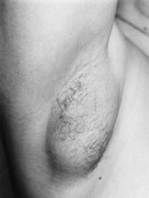 armpit breast