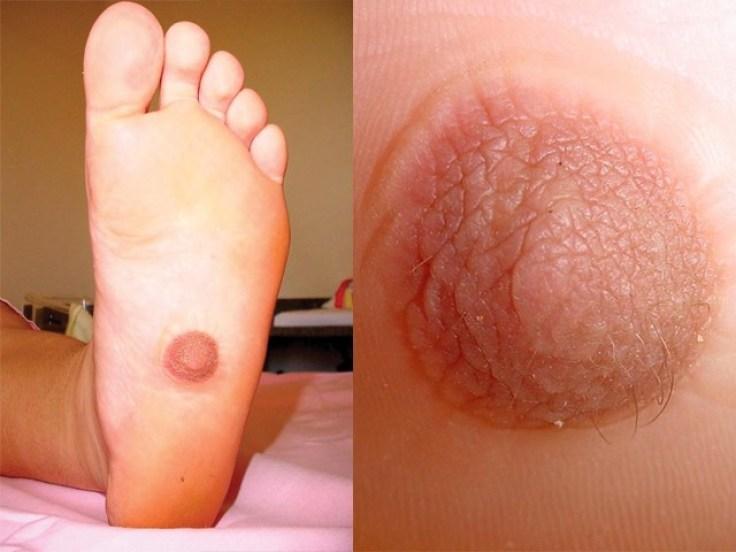 Foot Nipple