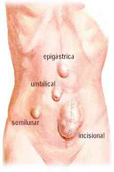 ventral-hernias