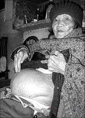 Huang Yijun - Stone Pregnancy