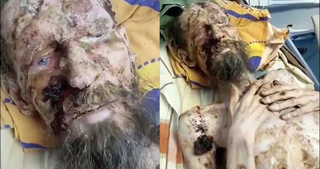 mummified man found alive