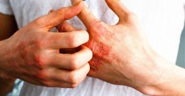 cbd eczema