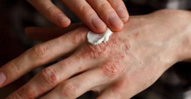 Cannabis Topical Psoriasis Treatment