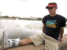 Doctors Uptick In Foot Injuries Barefoot Running