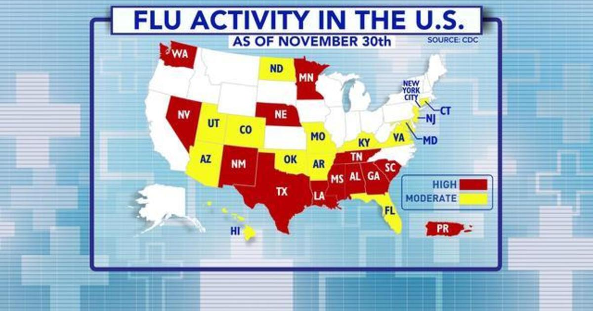 Flu season comes early this year due to unexpected virus cdc says ...