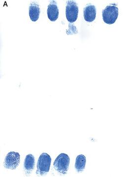 missing-fingerprints-250.jpg