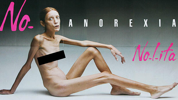 anorexia isabellecaro 640 - 「痩せすぎモデルはもう使わない」!ルイ・ヴィトン、グッチの新たな方針