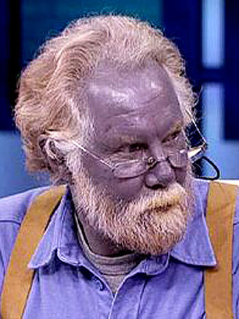 Argyria  9 uncommon skin conditions  Pictures  CBS News