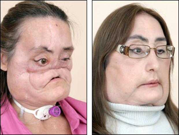Connie Culp Face Transplant Recipient Meets Donor Family
