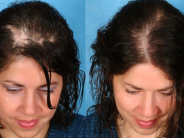 Stress High Hormone Levels Eek Hair Loss In Women Top