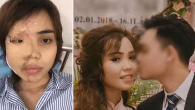 Hombre ataca con ácido a su novia, días antes de su boda