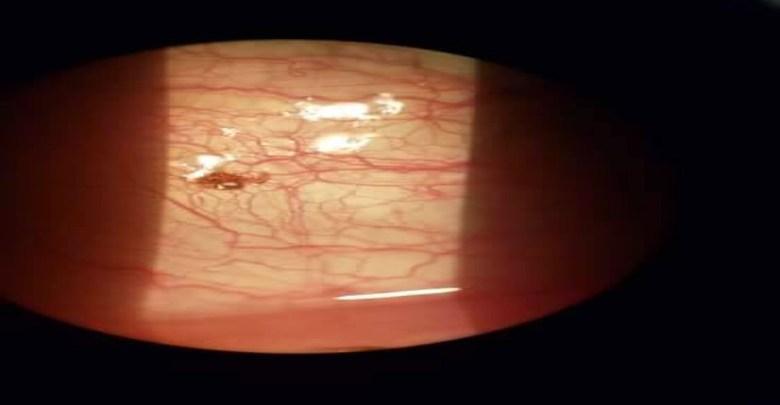 Fue al médico por irritación en el ojo; tenía una garrapata incrustada