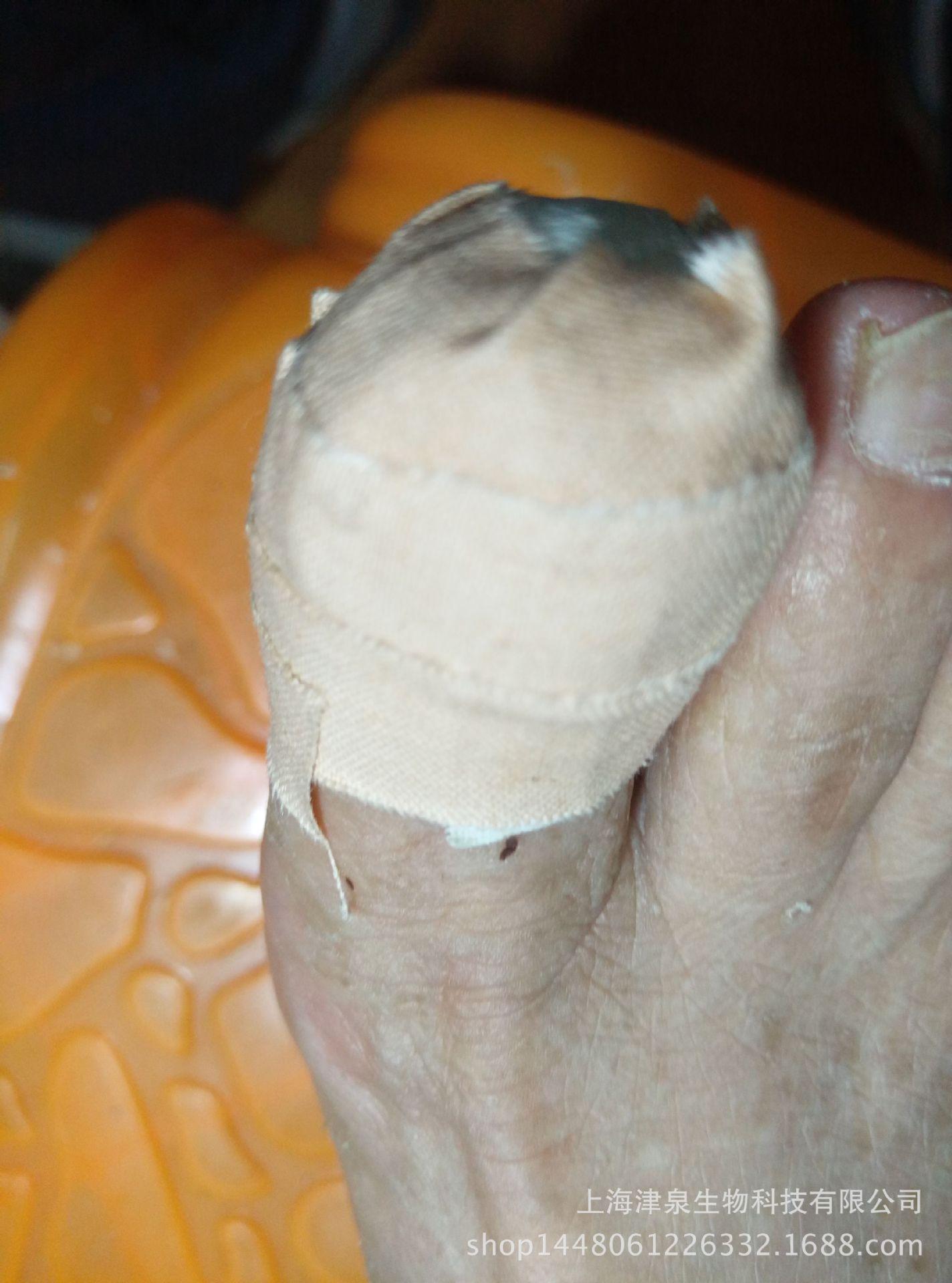 灰指甲軟甲膏_灰指甲膏中草藥無痛灰指甲軟甲膏脫甲膏 - 阿里巴巴