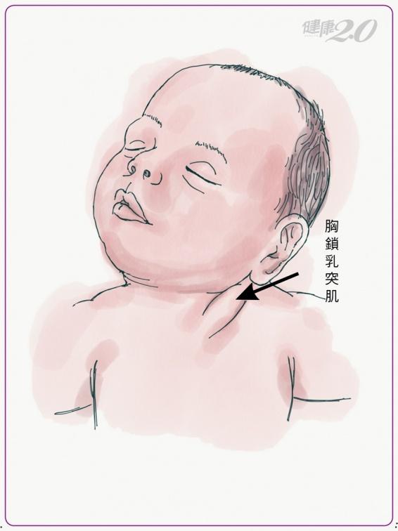 寶寶頭常歪一邊恐非可愛 小心斜頸!留意4大癥狀把握治療期 健康2.0