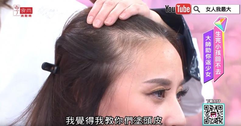 產後掉髮、髮際線稀疏怎麼辦?髮神吳依霖傳授超實用2招 | 女人我最大