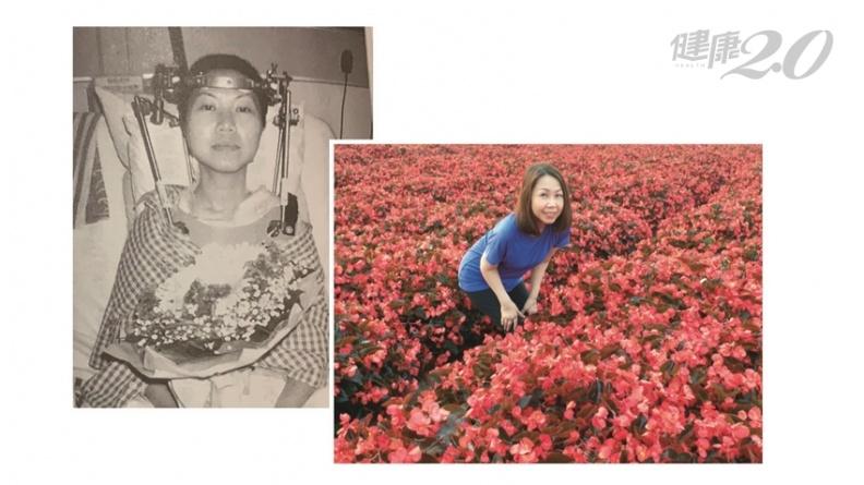 她21歲罹病差點癱瘓,失去性命!「把病痛看成祝福」與病共存30年|健康2.0
