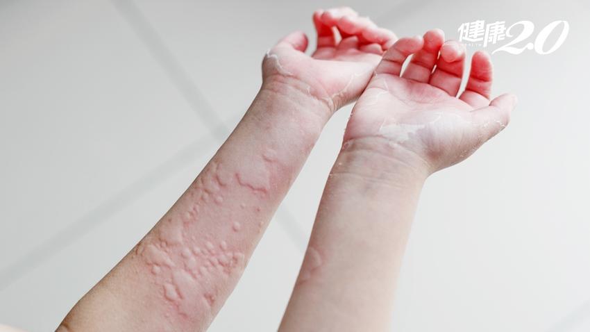為何蕁麻疹總是半夜發作?中醫止癢新招加了這味藥 效果更好|健康2.0