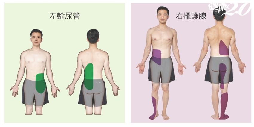 「右肩痛」竟是肝臟引起?「6種狀況」你的痛和內臟有關|健康2.0