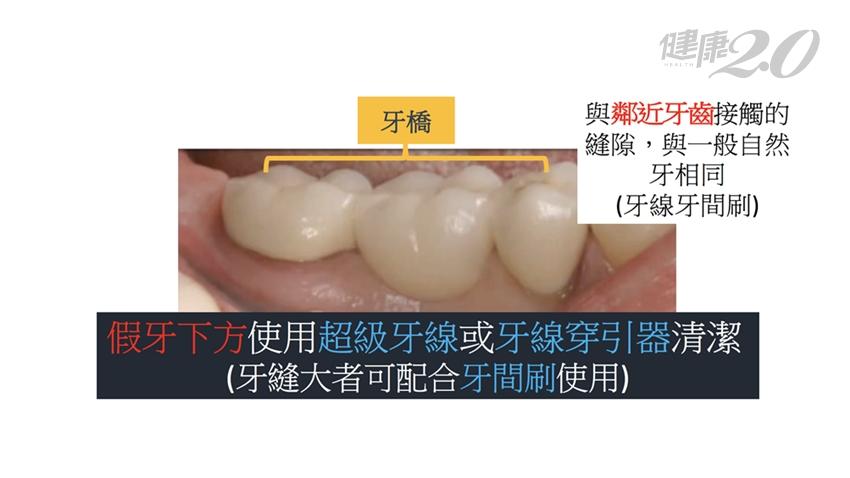 假牙可以用多久?固定假牙需要清潔?牙醫揭1招延長假牙壽命 健康2.0