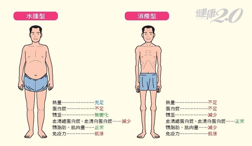 身體缺哪種營養素?缺乏蛋白質會「變瘦」還是「變胖」?3種人小心了 健康2.0