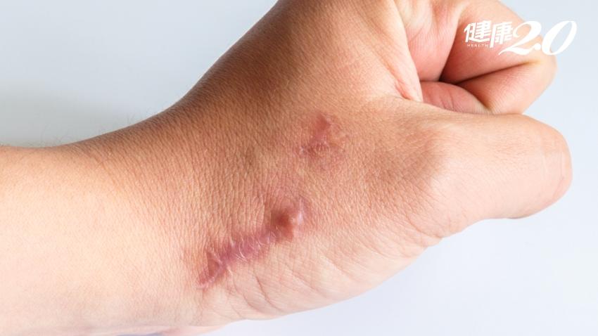 肥厚性疤痕、蟹足腫。傻傻分不清?如何避免疤痕組織再次增生?|健康2.0