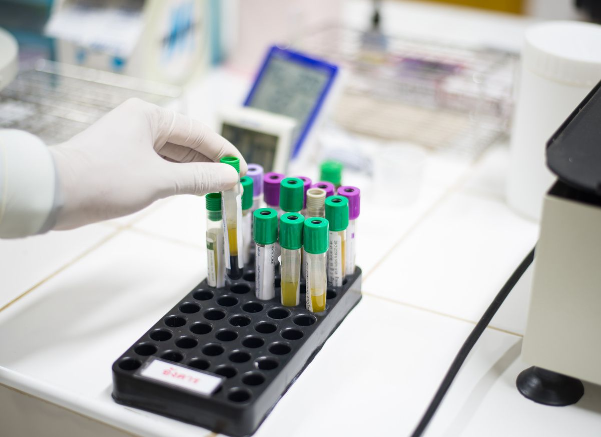 Lab tech puts sample into a holder with other samples