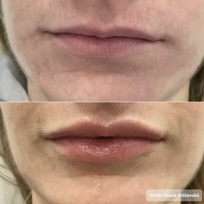 lips Concept Clinic