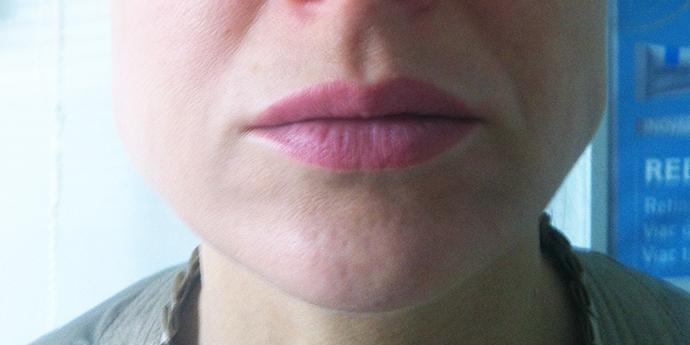 botulotoxín, Concept Clinic, MUDr. Diana Višňovská