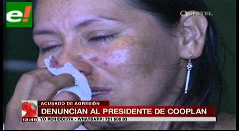 Mujer denuncia al presidente de Cooplan de brutal agresión
