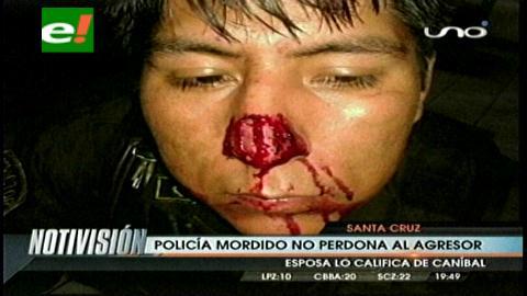 Un hombre muerde la nariz a un policía para evitar ser aprehendido