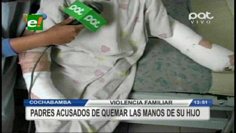 Cochabamba: Padre le quema las manos a su hijo