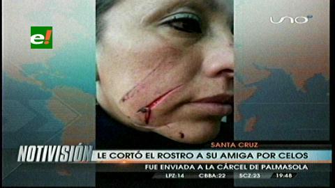 Mujer le cortó el rostro a su amiga por celos