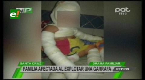Una joven se encuentra grave: Fuga de gas provoca quemaduras a una familia