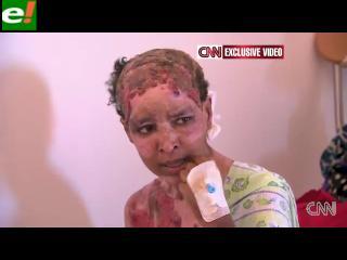 La mujer que el hijo de Gadafi quemó viva