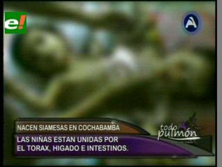 Nacen siamesas en Cochabamba