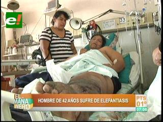 Santa Cruz: Hombre con elefantiasis y obesidad necesita ayuda