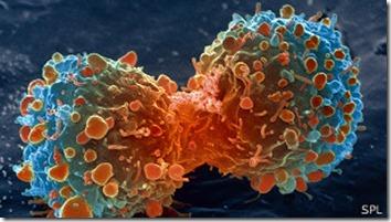 Los investigadores realizaron el estudio en un tipo de cáncer de pulmón.