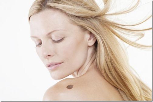consejos-para-prevenir-un-melanoma-en-la-piel-1