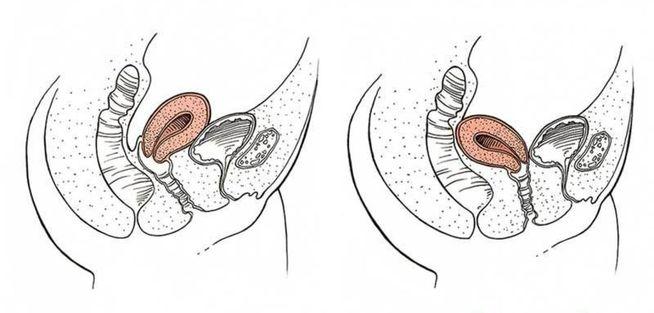 que es retroversion uterina