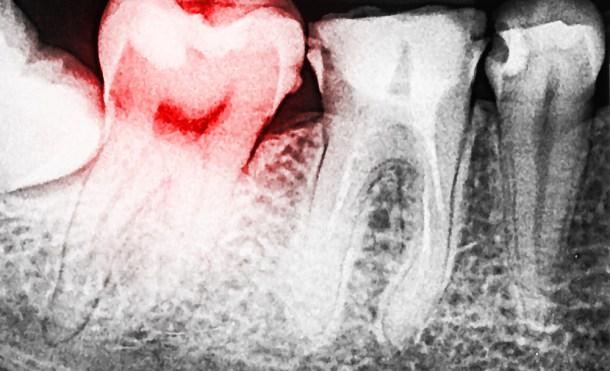 Así eran los dentistas de hace 14.000 años