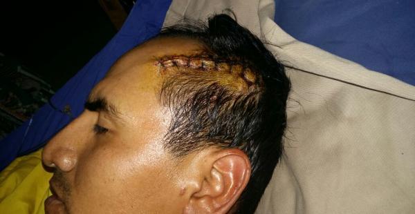 Ronald Soria tiene una herida grande en la cabeza. También le perforaron los intestinos.
