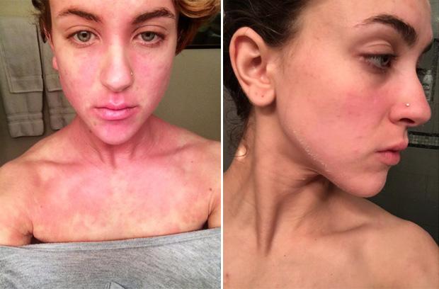 En la foto de la izquierda, Ciena hace dos años, publicó esta foto para decir que es de las peores veces en las que ha estado; la foto de la derecha la compartió hace unos días.