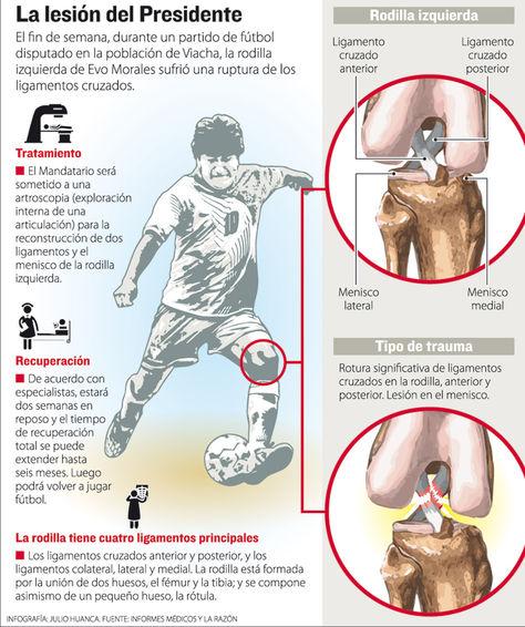Infografía explicativa sobre la rotura de ligamentos de la rodilla del Presidente Evo Morales. Foto: La Razón