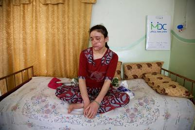 Lamiya Aji Bashar trató de escaparse cuatro veces del ISIS antes de lograrlo. La fuga fue una odisea, perdió la vista en el ojo derecho a raíz de la explosión, que le dejó grandes cicatrices en el rostro. AP /Balint Szlanko
