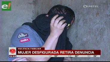 Mujer desfigurada retira denuncia contra su agresor