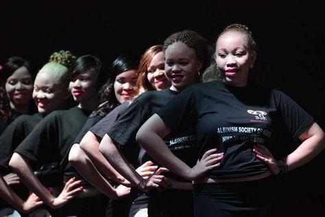 Jóvenes albinos en el escenario participan del concurso organizado por la Sociedad de albinismo de Kenia en Nairobi.